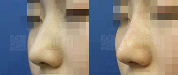 코필러+턱끝필러 시술전후
