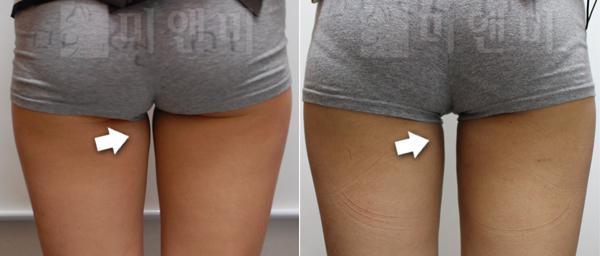 허벅지안쪽 시술전후